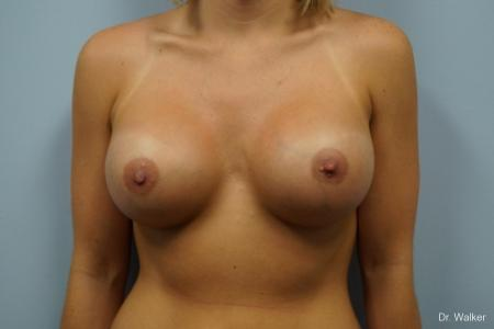 Breast Augmentation: Patient 3 - After 1