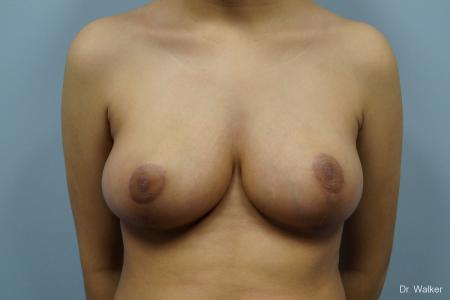 Breast Reduction: Patient 1 - After Image 1