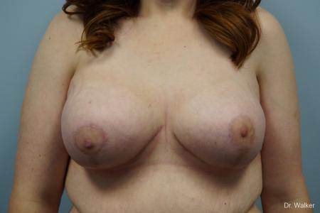 Breast Lift And Augmentation: Patient 1 - After 1