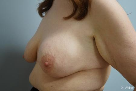 Breast Lift And Augmentation: Patient 1 - Before Image 3