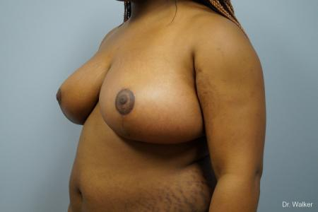 Breast Reduction: Patient 6 - After Image 4