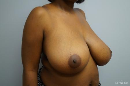 Breast Reduction: Patient 2 - Before Image 3