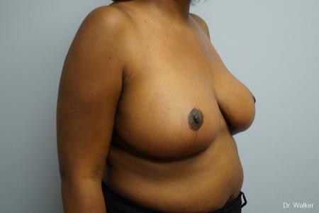 Breast Reduction: Patient 2 - After Image 3