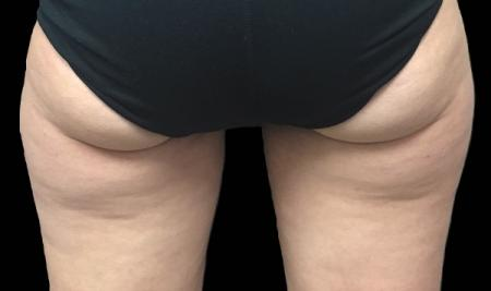 CoolSculpting®: Patient 7 - Before