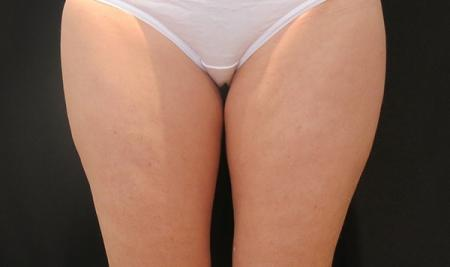 CoolSculpting®: Patient 8 - Before
