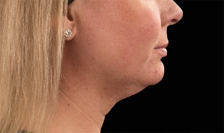 CoolSculpting®: Patient 18 - Before Image 1
