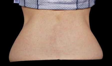 CoolSculpting®: Patient 10 - Before Image 1