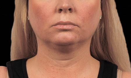 CoolSculpting®: Patient 15 - Before Image 1