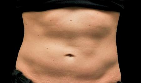 CoolSculpting®: Patient 16 - Before Image 1