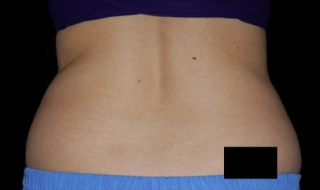 CoolSculpting®: Patient 9 - Before Image 1