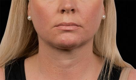 CoolSculpting®: Patient 15 - After Image 1
