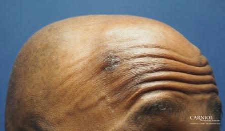 Mole/Age Spot Removal: Patient 3 - After Image 2