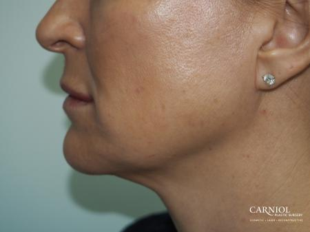 Non-Surgical Mini-Facelift: Patient 2 - After Image