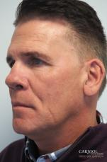 Non-Surgical Facelift: Patient 2 - Before Image