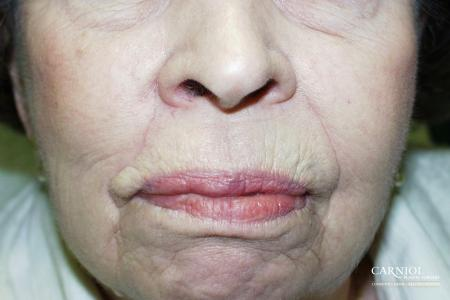Skin Cancer Reconstruction - Face: Patient 7 - After Image