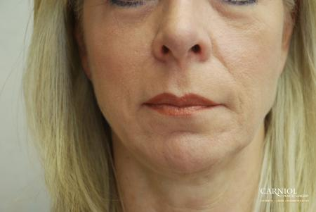Facial Tightening: Patient 7 - Before Image