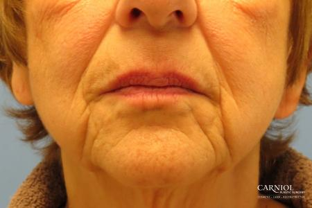 Non-Surgical Mini-Facelift: Patient 9 - Before Image