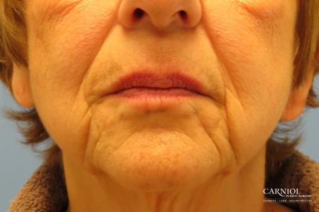 Non-Surgical Mini-Facelift: Patient 9 - Before Image 1