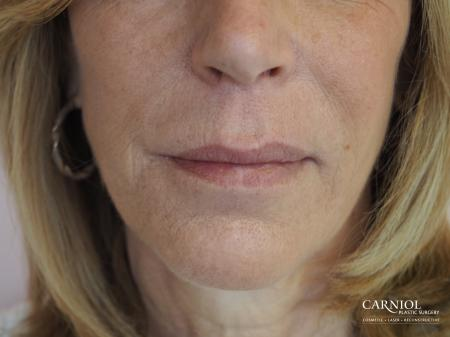 Fillers: Patient 4 - Before Image