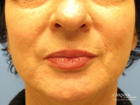 Lip Augmentation: Patient 6 - After Image