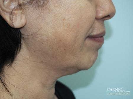 Facial Tightening: Patient 1 - Before Image