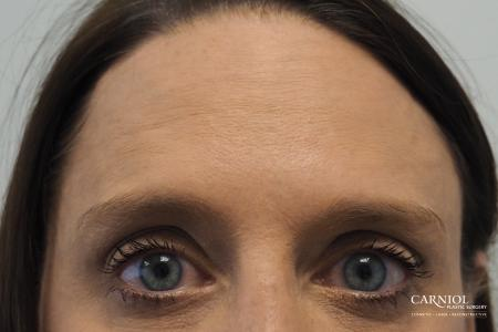 BOTOX® Cosmetic: Patient 4 - After Image 2