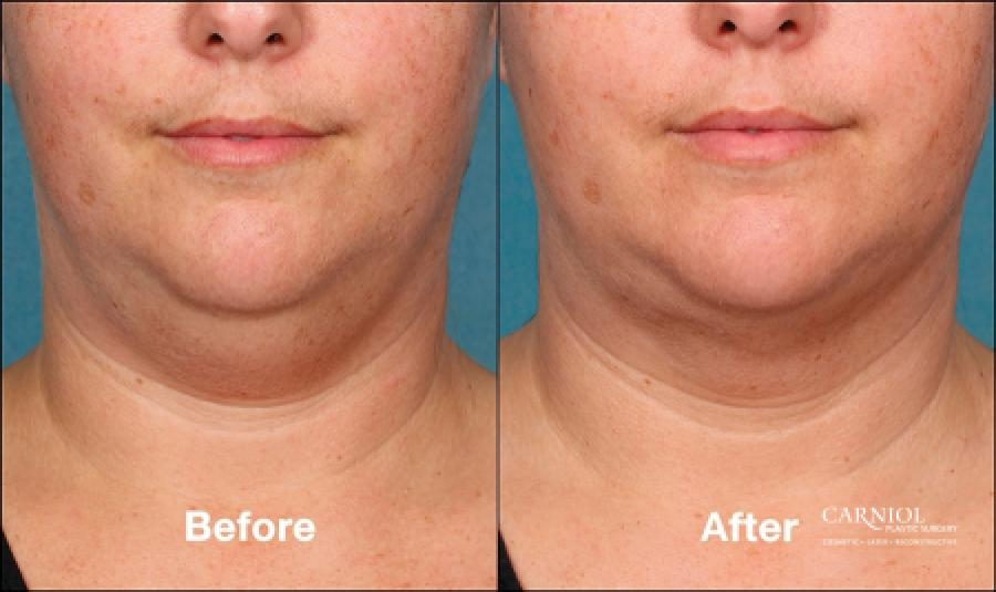 Double Chin, Kybella: Patient 1 - Before and After Image