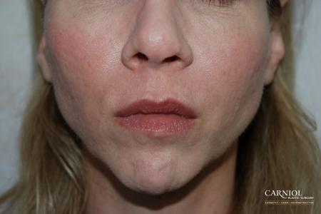 Facial Tightening: Patient 8 - After Image
