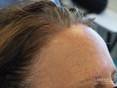 Nonsurgical Hair Restoration: Patient 1 - Before Image 2