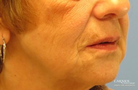 Non-Surgical Mini-Facelift: Patient 9 - After Image 2