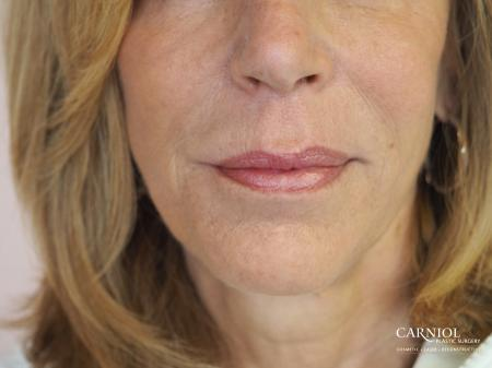 Fillers: Patient 4 - After Image 1