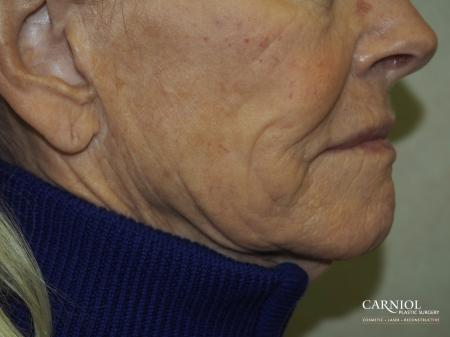 Facial Tightening: Patient 6 - After Image