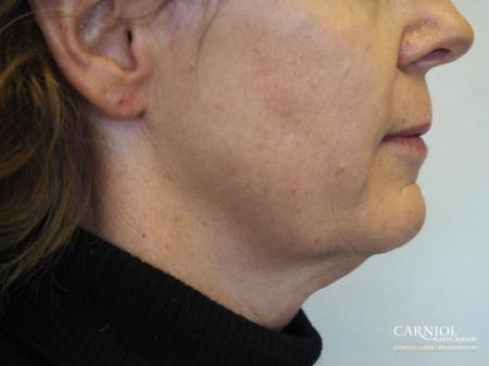 Non-Surgical Mini-Facelift: Patient 5 - After Image