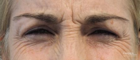 BOTOX® Cosmetic: Patient 5 - Before and After Image 3