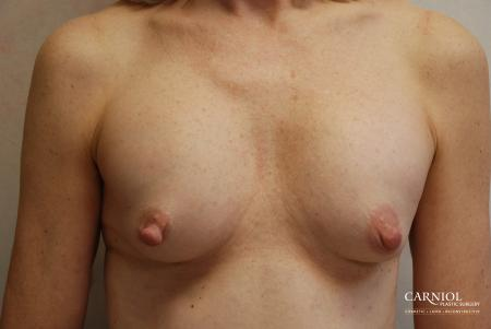 Breast-augmentation-revision: Patient 1 - Before Image
