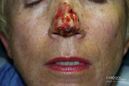 Skin Cancer Reconstruction - Face: Patient 2 - Before Image