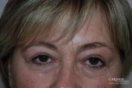 Upper Blepharoplasty Before - After Image