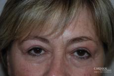 Upper Blepharoplasty Before - After Image