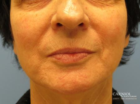 Lip Augmentation: Patient 6 - Before Image