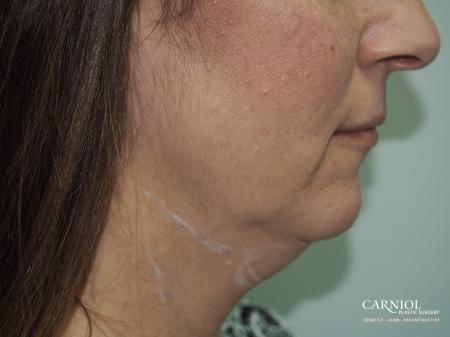 Non-Surgical Neck Lift: Patient 1 - Before Image