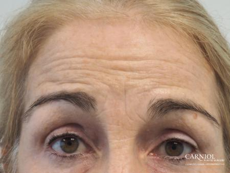 BOTOX® Cosmetic: Patient 5 - Before Image 2