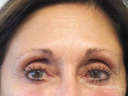 BOTOX® Cosmetic: Patient 6 - Before Image 1