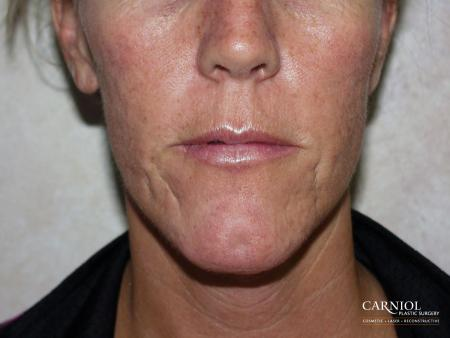 Acne Scars: Patient 1 - Before Image