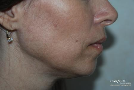 Fractional Resurfacing: Patient 2 - After Image