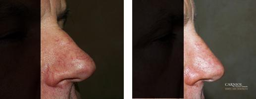 Spider Veins: Patient 3 - Before and After Image