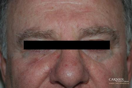 Skin Cancer Reconstruction - Face: Patient 4 - After Image