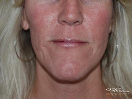 Acne Scars: Patient 1 - After Image 1