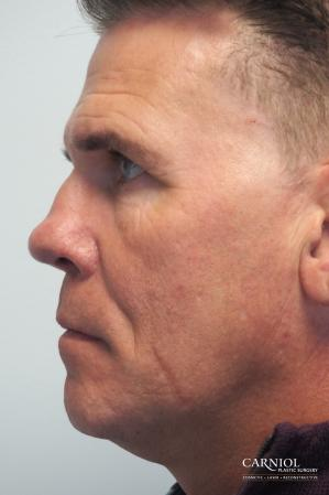 Non-Surgical Facelift: Patient 2 - Before and After Image 3