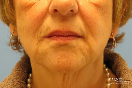 Non-Surgical Facelift: Patient 1 - After Image 1