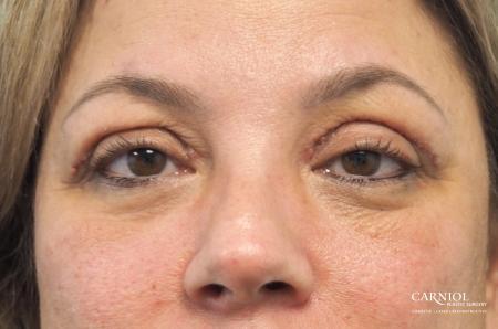 Blepharoplasty: Patient 1 - After Image 1